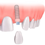 Implant Dentistry Illustration