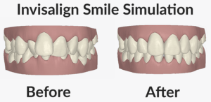 Invisalign Before and After Illustration