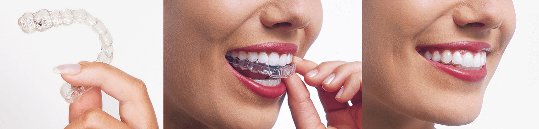 Invisalign In London The Clear Alternative To
