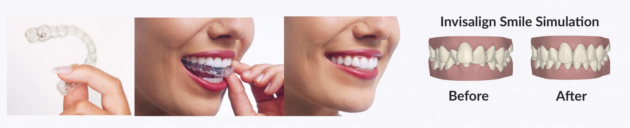 before-and-after-invisalign-banner