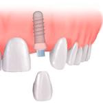 Implant Dentistry Illustration
