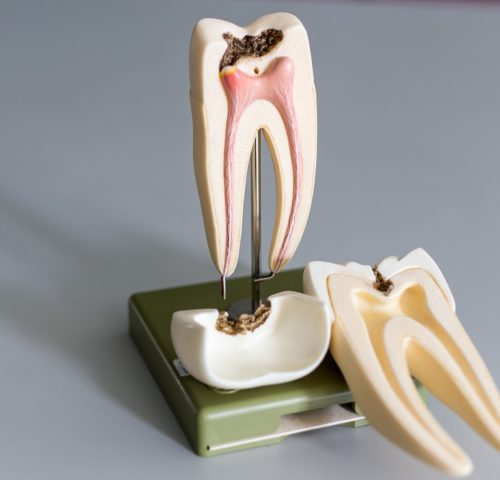 Root Canal Tooth Model