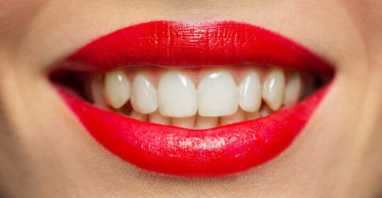7 Ways a Smile Makeover Can Improve Your Life