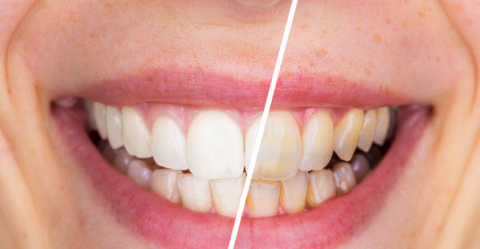 Here's How Professional Teeth Whitening Works